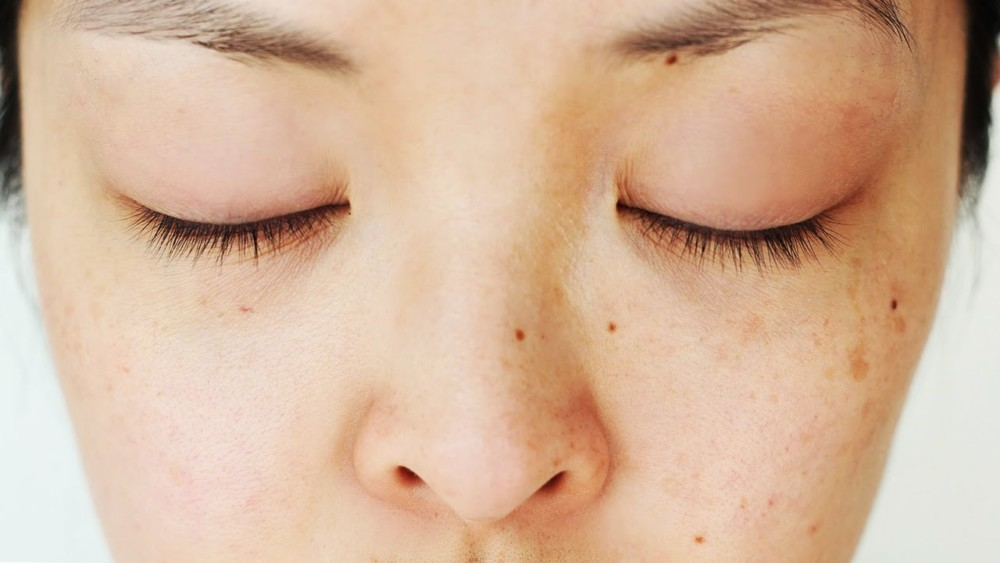Skin Care 101 What Exactly Causes Dark Spots Times