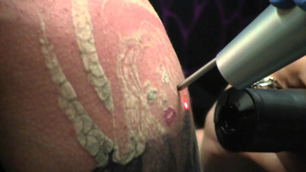 Is It Worth Undergoing a Laser Tattoo Removal Procedure? – Times ...