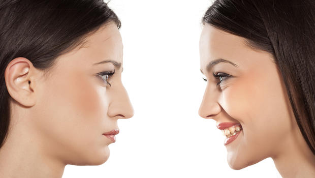 When You Need the Rhinoplasty Options - Times Square Chronicles